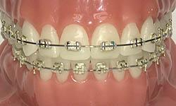 Types Of Braces Easton Orthodontic Associates Easton Pa